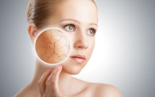 Как определить: сухая или жирная кожа на лице?