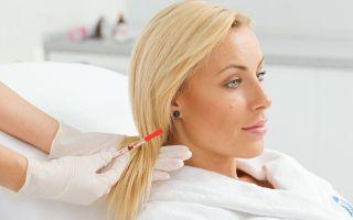 Процедура плазмолифтинга волос: что это такое?