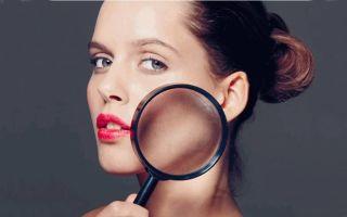 Способы избавления от купероза на лице, домашние рецепты, готовые средства и салонные процедуры