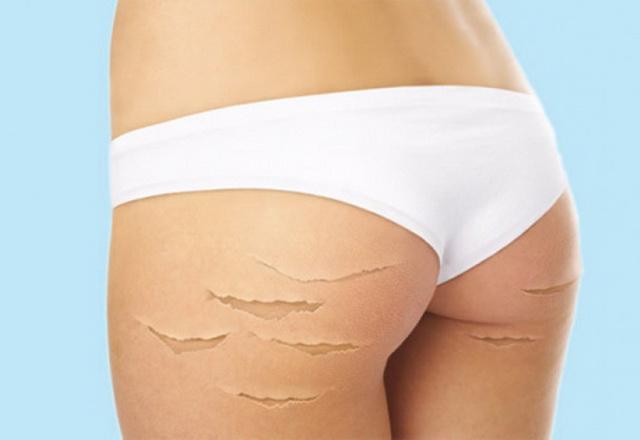 Салонные и домашние способы устранения растяжек на теле.
