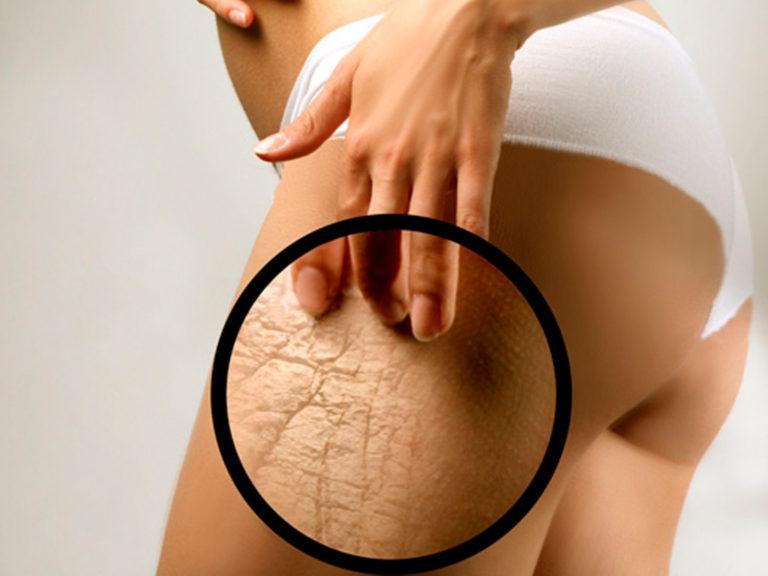 Профилактические меры против появления растяжек на теле.