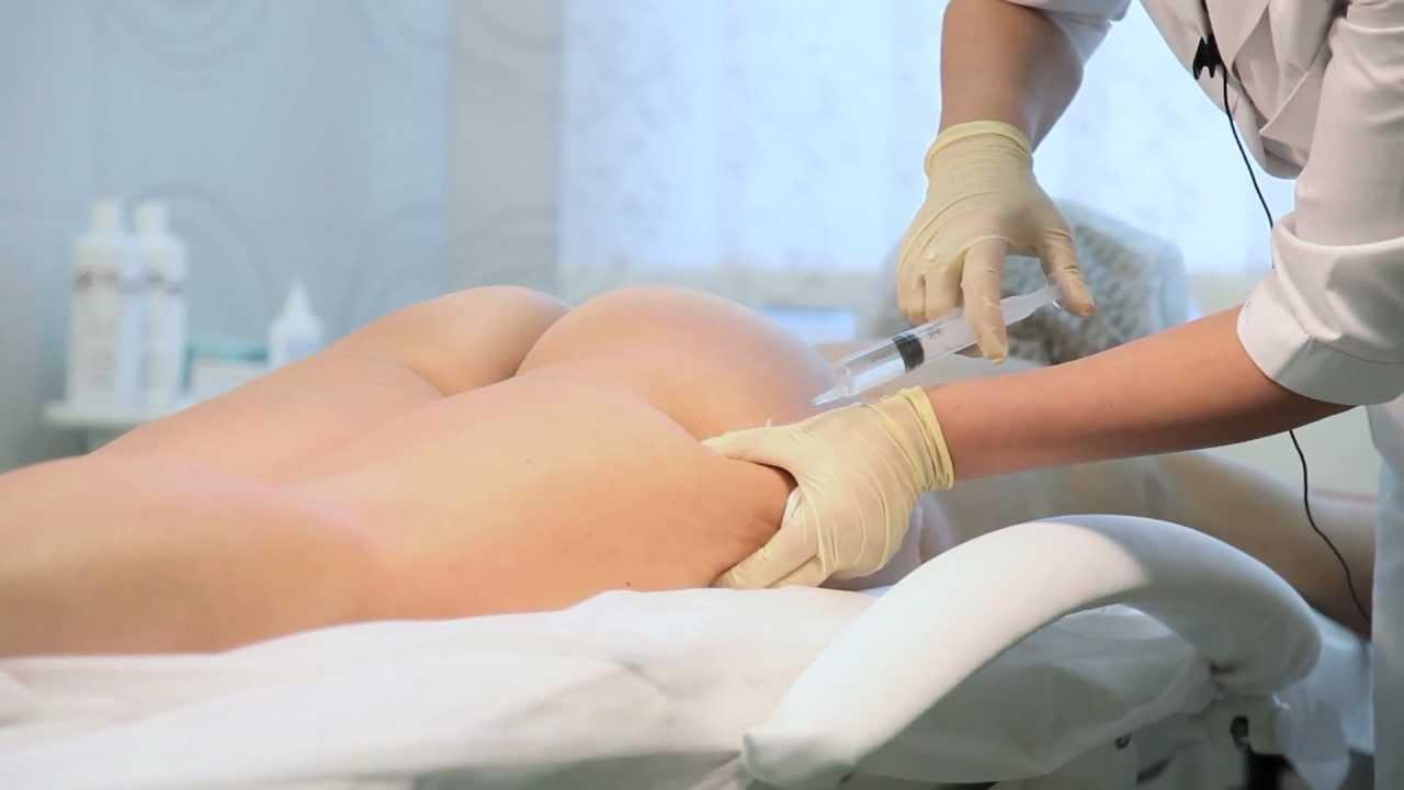 Этапы проведения мезотерапии тела для похудения.